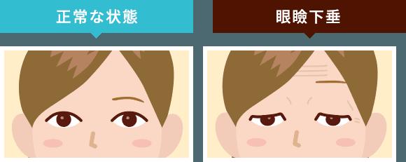 正常な状態と眼瞼下垂のイメージ