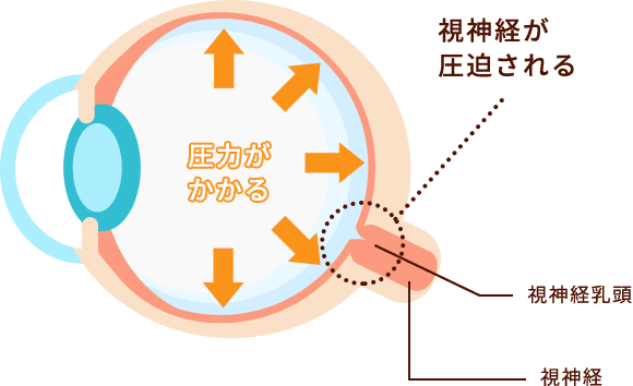 緑内障の仕組みイメージ