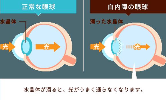 水晶体が濁ると、光がうまく通らなくなります。